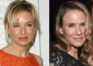 Zellweger, before and after